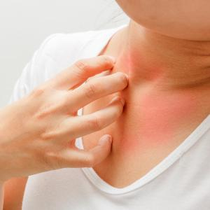 Increased skin pH a risk factor for atopic dermatitis