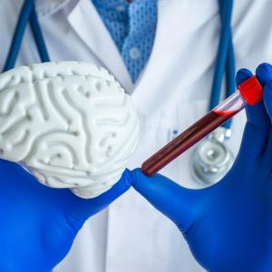 Identification of biomarkers one step closer towards blood testing for Alzheimer's