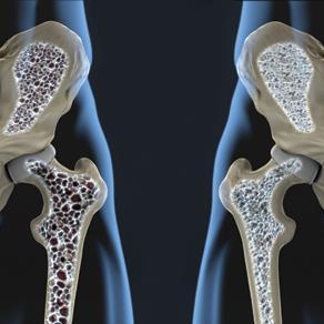 三氯生与骨质疏松相关