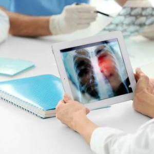 Genetic testing vital for lung cancer diagnosis, management