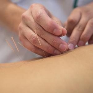Laser moxibustion eases pain, improves function in knee OA