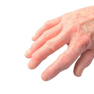 Secukinumab leads to rapid, sustained pain relief in psoriatic arthritis
