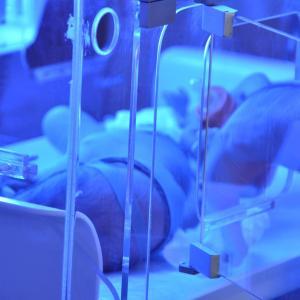 Several obstetric, neonatal characteristics linked to jaundice