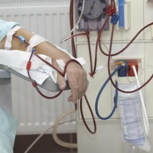 CKD patients at increased risk of colorectal cancer