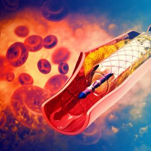 Ticagrelor monotherapy outshines DAPT after complex PCI