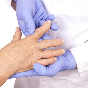 TNFi use in RA tied to reduced VTE risk