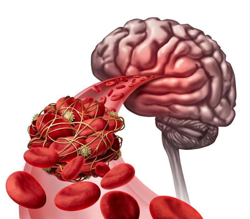 dvt in brain