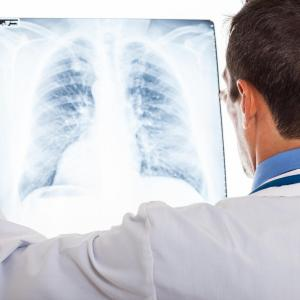 Pirfenidone may protect against progression, death in idiopathic pulmonary fibrosis