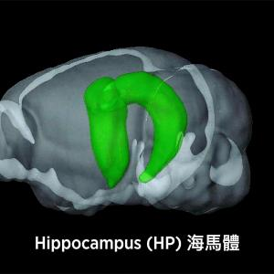 Adherence to a healthy diet tied to larger hippocampal volume
