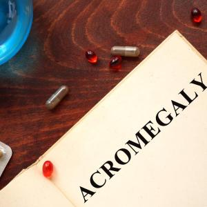 Somatostatin analogues improve acromegaly but affect glucose metabolism
