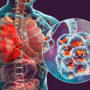 Empirical anti-MRSA antibiotics may not benefit patients with pneumonia