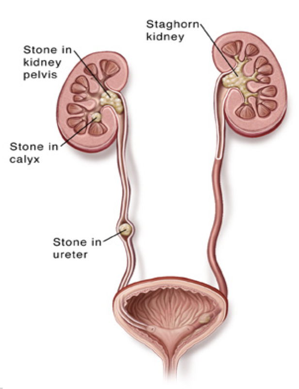 Kidney stones [Image courtesy of NUH]