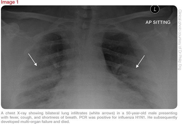 Managing pneumonia Image-01