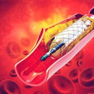 PCI yields short-term mortality gains in STEMI patients receiving dialysis
