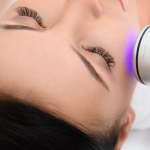 Superficial chemical peels relatively safe for darker skins