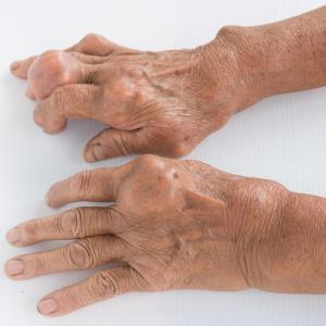 Few gout patients on ULT despite high disease burden in SG