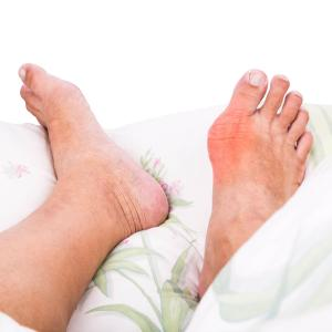 Gout patients do not have enhanced resistance to infections