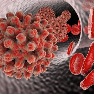 Interferon therapy benefits patients with severe infections of Hepatitis delta
