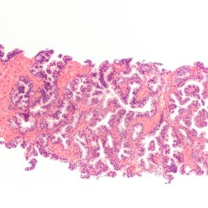 Transperineal biopsy an alternative to transrectal biopsy in patients with suspected prostate cancer