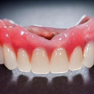Active gingival inflammation tied to hypertension