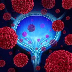 Sacituzumab govitecan shows promise in advanced bladder cancer