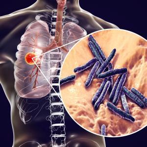 Shorter regimen an option for rifampicin-resistant TB