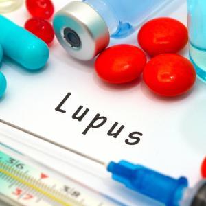 Ustekinumab yields sustained clinical benefit in systemic lupus erythematosus