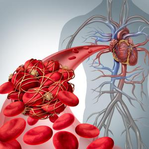 Poor glycaemic control tied to higher incidence of myocardial ischaemia, CAD