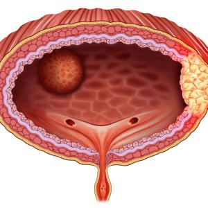 Squamous cell carcinoma of the bladder does not promote high-risk HPV