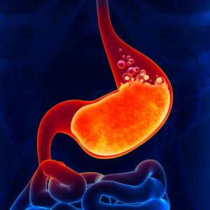 Challenges in the Medical Management of Reflux Symptoms: What's New?