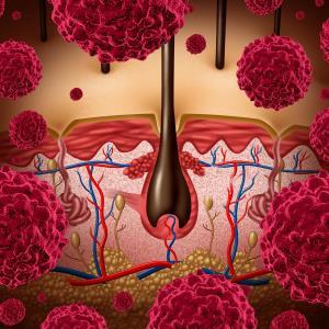 Adjuvant dabrafenib plus trametinib prolongs RFS in stage III melanoma
