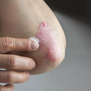 Psoriasis carries increased risk of serious infection