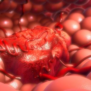 Tumour budding may increase nodal metastasis rate, mortality risk