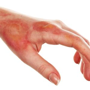 Diabetes mellitus ups risk of hospital-acquired infections in burn injury patients