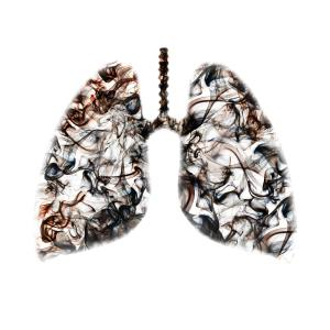 Eosinophil count <2 percent predicts longer hospital stay in COPD exacerbations