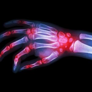 From clinical trials to real-world evidence: Tofacitinib in the treatment of rheumatoid arthritis