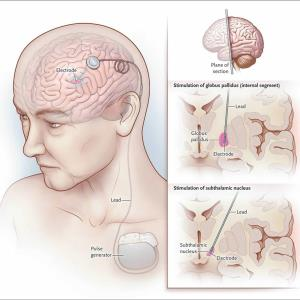 Deep brain stimulation safe, effective in refractory OCD