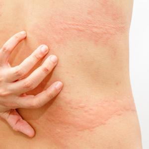 Cetirizine an attractive alternative to diphenhydramine for hives