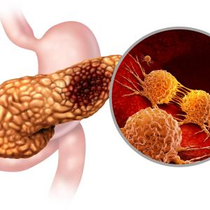 Rucaparib shows encouraging responses in advanced pancreatic cancer