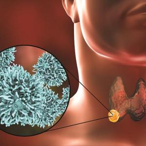 Initial treatment with lobectomy safe, effective in papillary thyroid carcinoma