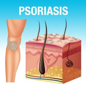 Using Enstilar® in patients with plaque psoriasis before initiation of phototherapy or systemic therapy