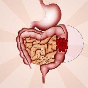 Antidepressant use after colon cancer diagnosis does not increase risk of recurrence