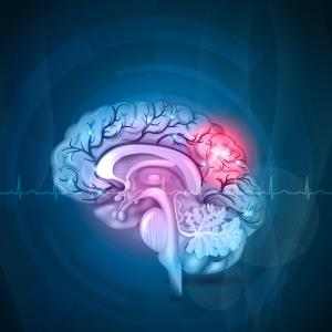Genetic, lifestyle factors tied to risk of stroke