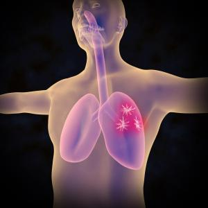 Segmentectomy on par with lobectomy for early NSCLC