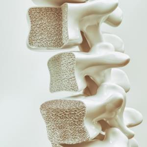 Denosumab an option for high-risk glucocorticoid-induced osteoporosis