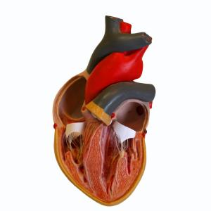 TAVR effective in both bicuspid and tricuspid valves