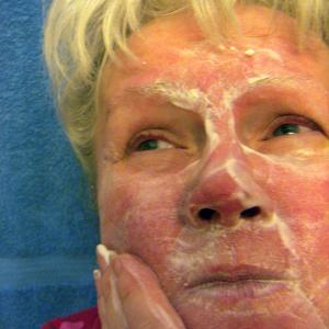 Common comorbidities in rosacea patients