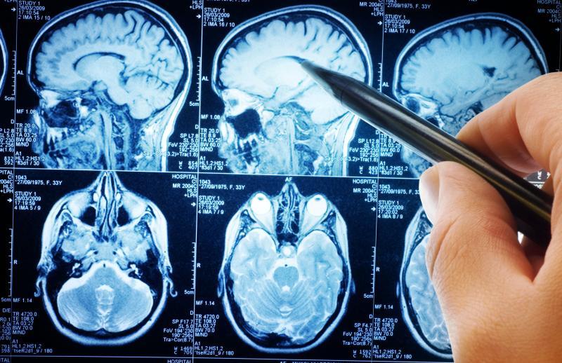 Aprepitant safe for subacute sclerosing panencephalitis, but ...