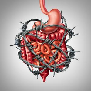 Managing irritable bowel syndrome in primary care