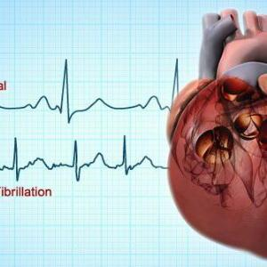 High-dose edoxaban as effective as, but safer than, warfarin for atrial fibrillation